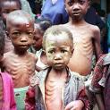Khoảng 1,4 triệu trẻ em Phi châu đang bị đe dọa chết vì thiếu dinh dưỡng trầm trọng