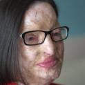Lá thư của Đức Giáo Hoàng gởi cho một phụ nữ bị tạt axít